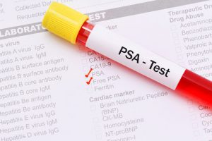 سرطان پروستات و آزمايش PSA