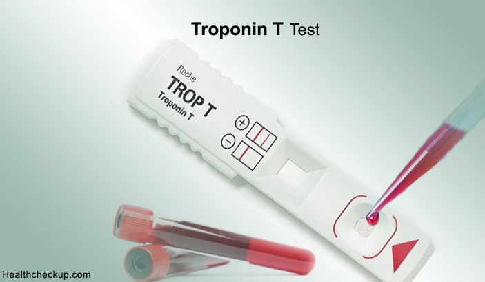 مروري بر تروپونین