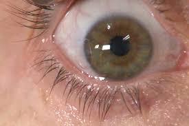 مروری بر عفونتهای قارچی چشم