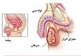 آزمایشگاه و بالین سرطان پروستات