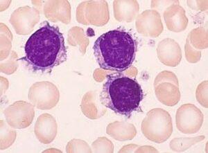 لوسمی سلولهای مودار