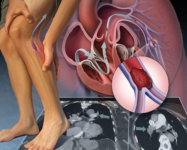 بیماران قلبی و عروقی