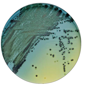 میکروبشناسی بالینی