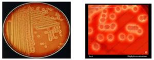 میکروبشناسی