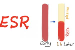 ESR آزمايشي با قدمت صد ساله با كاربردهاي جديد